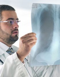 What to Expect From COPD Chest X-Rays