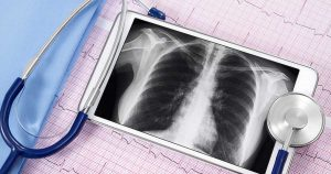Chest x-ray on tablet screen