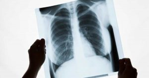 A doctor holding up a chest x-ray to the light.